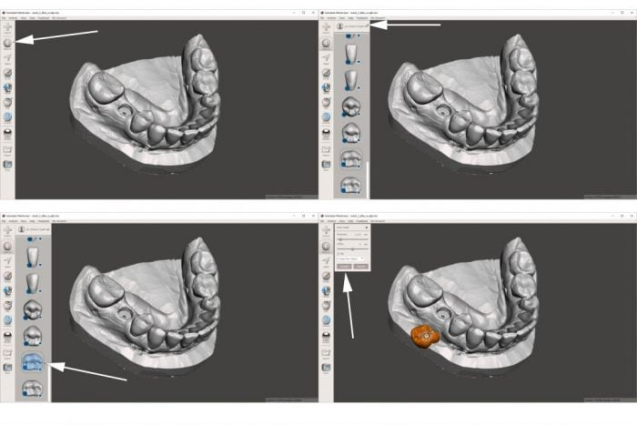 Moving teeth in Meshmixer