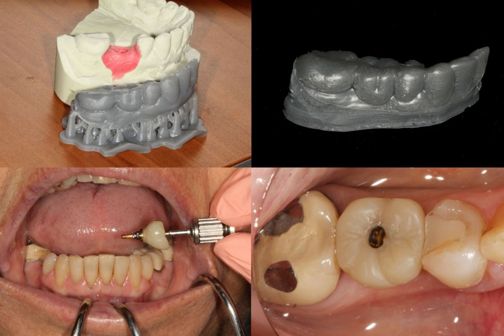Moving Teeth Using Open Source Software Michael Scherer Dmd Ms
