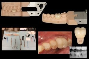 Formlabs Dental Model Resin and crown