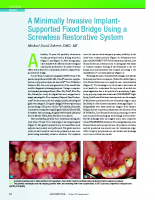 SchererMD-A_Minimally_Invasive_Implant-Supported_Fixed_Bridge-Clin_Comp_Ed_Dent_2018